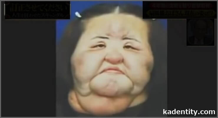 整形依存で顔が腫れ上がって、その顔が扇風機に似ていた人が扇風機おばさんの正体です。